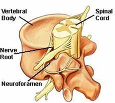 Figure 1 - Spinal nerve structures, nerve root and neuroforamen